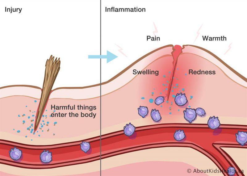 infiammazione dei tessuti e dieta corretta per il tumore