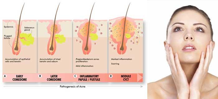 tipologie di acne come si cura