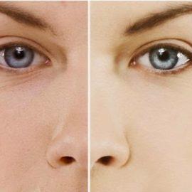 Rimedi naturali per l'Acne: dieta, riflessologia e fitoterapia