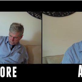 CBD e Parkinson effetto Prima e dopo
