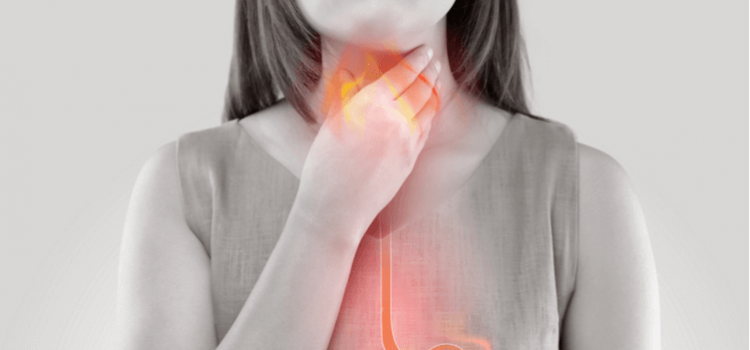 Reflusso gastroesofageo o gastricoGERD MRGE